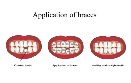 The use of braces. Crooked teeth. Orthodontics. Infographics. Vector illustration on isolated background.