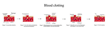 thrombus: Blood clotting. Stage clotting. Infographics. Vector illustration