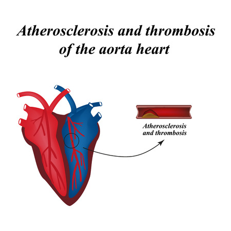 Atherosclerosis and thrombosis of arteries of the heart. Infographics. Vector illustration. Illustration