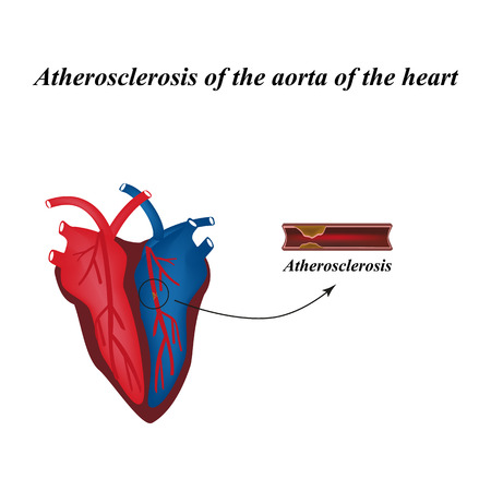 Atherosclerosis of the arteries of the heart. Infographics. Vector illustration.