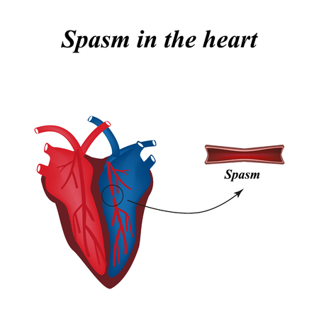 Herzinfarkt. Herzinfarkt. Verstopfte Arterie, Beschädigten ...