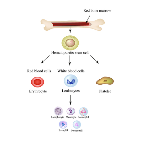 Limbo blood cells in bone marrow. Infographics. Vector illustration. Vectores