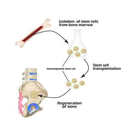 Stem cells from bone marrow are used for bone regeneration. Infographics. Sacral region, sacrum. Vector Illustration