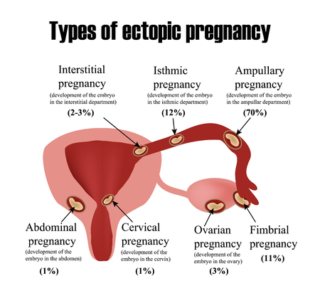 ovary: Types of ectopic pregnancy. Infographics. illustration on isolated background Illustration