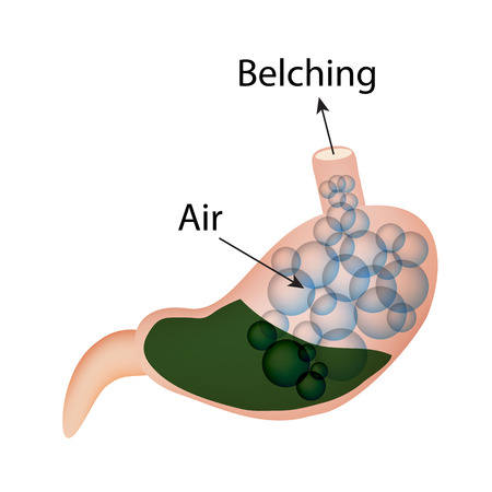 acid reflux: Belching. Air in the stomach. The structure of the esophagus and stomach. Infographics.