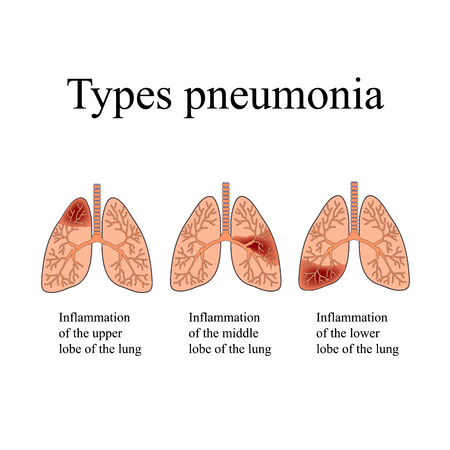 pneumonia: Pneumonia. The anatomical structure of the human lung. Type of pneumonia. illustration on isolated background. Illustration