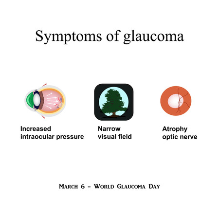 optic nerve: Glaucoma. Symptoms of glaucoma. Atrophy of the optic nerve. Field of view at glaukome.Stroenie eyes. Infographics. illustration on isolated background.