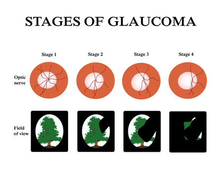 Glaucoma. The field of vision in glaucoma. Atrophy of the optic nerve. Infographics. illustration on isolated background