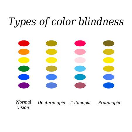 Arten der Farbenblindheit. Augenfarbe Wahrnehmung. Illustration auf weißem Hintergrund.
