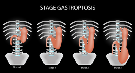 omission: Gastroptosis stomach. The omission of the stomach. Stage gastroptosis. illustration on a black background.