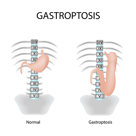 omission: Gastroptosis stomach. The omission of the stomach. Stage gastroptosis. illustration on isolated background.