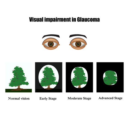 optic nerve: Glaucoma. The field of vision in glaucoma.  Infographics. illustration on isolated background.