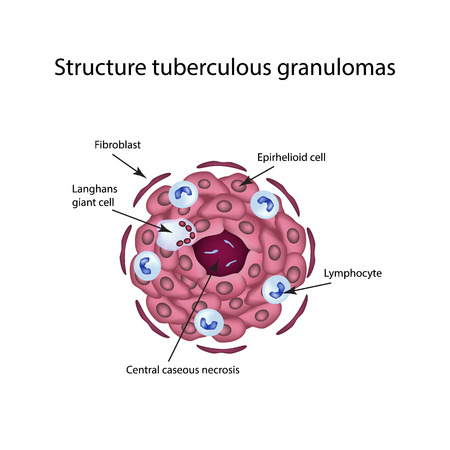 lesion: The structure of tuberculous granulomas. Infographics. illustration on isolated background. Illustration