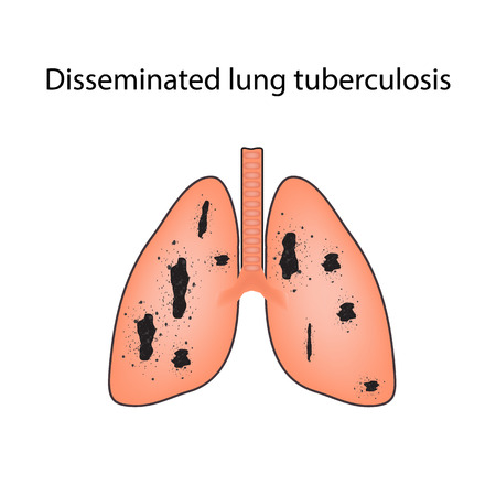 latent: Disseminated tuberculosis. Infographics. illustration on isolated background.