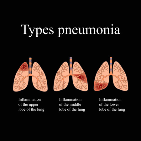 pneumonia: Pneumonia. The anatomical structure of the human lung. Type of pneumonia. Vector illustration on a black background.