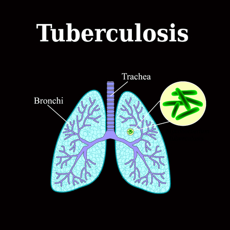 tb: Tuberculosis. Lung disease. Tubercle bacillus. Vector illustration on a black background. Illustration