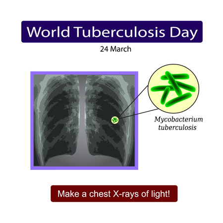latent: X-rays of light. Diagnosis of tuberculosis. Infographics. Vector illustration on isolated background.