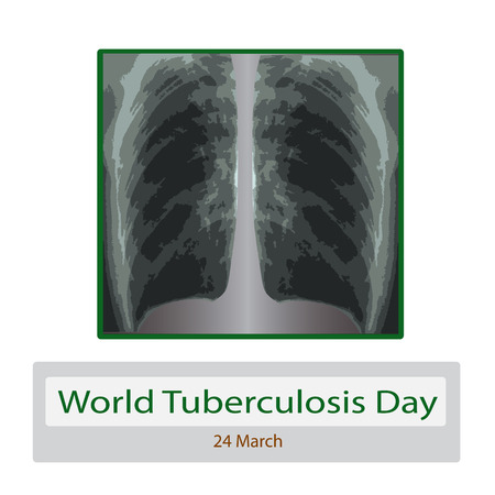 X-rays of light. Diagnosis of tuberculosis. Infographics. Vector illustration on isolated background.