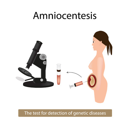 Amniocentesis. Analysis of amniotic fluid. Pregnant woman. Genetic diseases. illustration on isolated background.