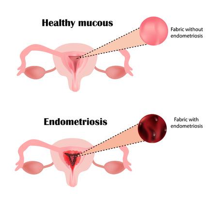 Endometriosis. The structure of the pelvic organs. Adenomyosis. The endometrium. Illustration