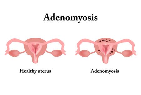 Endometriosis. The structure of the pelvic organs. Adenomyosis. The endometrium. 写真素材