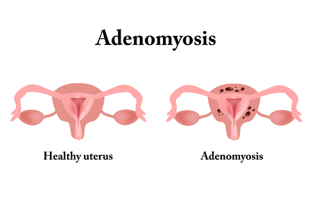 Endometriosis. The structure of the pelvic organs. Adenomyosis. The endometrium. 版權商用圖片