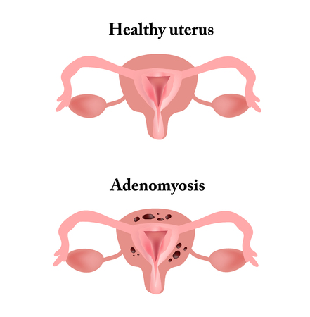 Endometriosis. The structure of the pelvic organs. Adenomyosis. The endometrium. Banco de Imagens