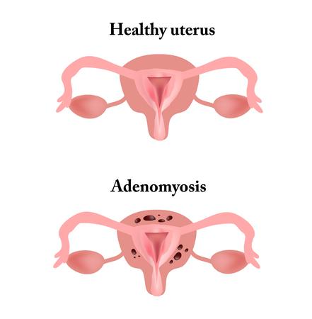 progesterone: Endometriosis. The structure of the pelvic organs. Adenomyosis. The endometrium. Stock Photo