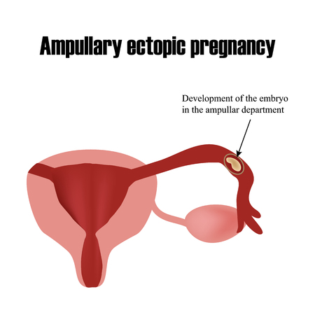 infertile: Development of the embryo in the ampullar department. Ectopic pregnancy. Infographics. Vector illustration on isolated background.