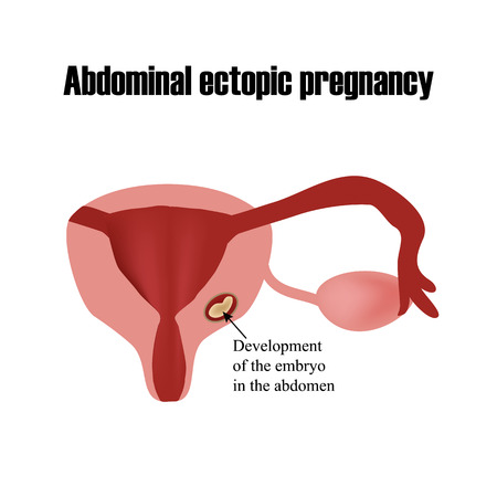 infertile: Development of the embryo in the abdomen. Ectopic pregnancy. Infographics. Vector illustration on isolated background.