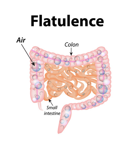 flatulence: Flatulence. Gases in the small intestine. The gases in the colon. The air in the intestine. The structure of the intestine. Infographics. illustration on isolated background.