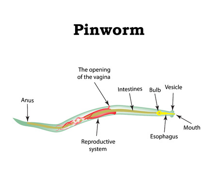itching: The structure of pinworms. Pinworm. illustration on isolated background.