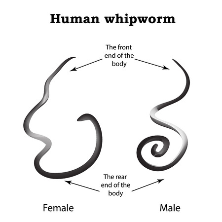 mucosa: Whipworm. Structure whipworm females. The structure of the male whipworm. Infographics. illustration on isolated background.