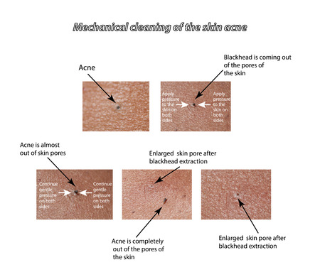 pores: Mechanical cleaning of the skin from acne.