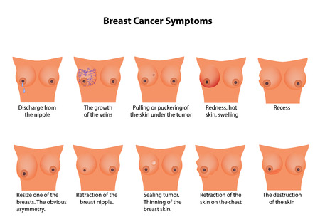 cancer symptoms: Symptoms of breast cancer. Infographics.