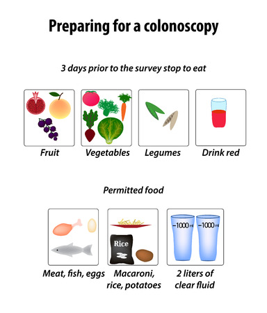 colonoscopy: Preparing for a colonoscopy. Diet for Colonoscopy. Infographics.