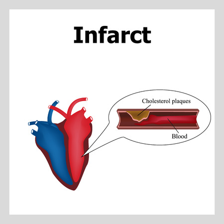 atherosclerosis: Heart attack. Atherosclerosis. Thrombus. Artery-clogging cholesterol. Cholesterol plaques Infographics Vector illustration Illustration