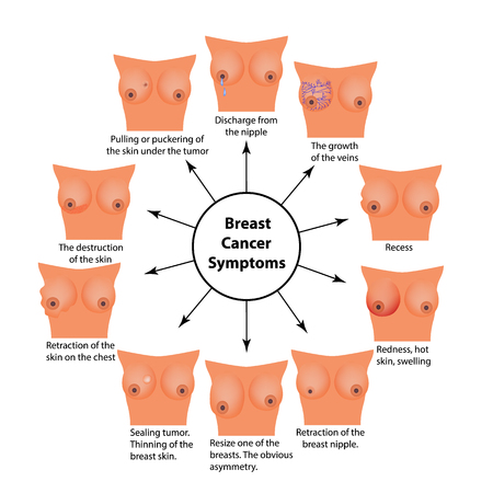 Symptoms of breast cancer. Infographics. Vector illustration on isolated background. Ilustracja