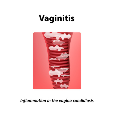 thrush: Vaginitis. Inflammation in the vagina candidiasis thrush. Infographics. Vector illustration on isolated background. Illustration