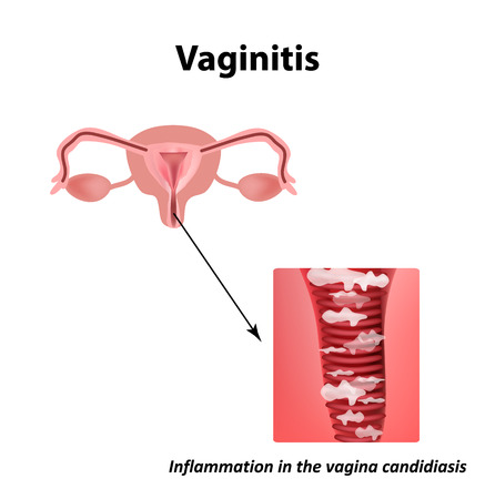 Vaginitis. Inflammation in the vagina candidiasis thrush. The structure of the pelvic organs. Infographics. Vector illustration on isolated background.