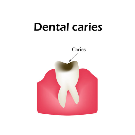 carious: Deep tooth decay. Illustration