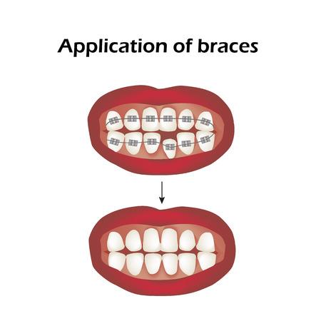 The use of braces. Crooked teeth. Orthodontics. Infographics. Illustration