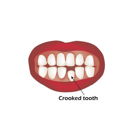Crooked teeth. Orthodontics. Infographics Vector illustration