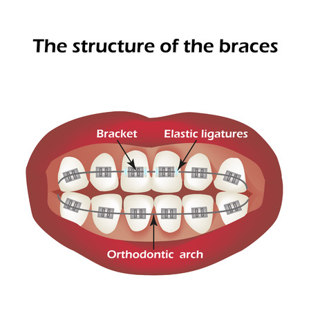 The structure of the braces. Orthodontics. Infographics.