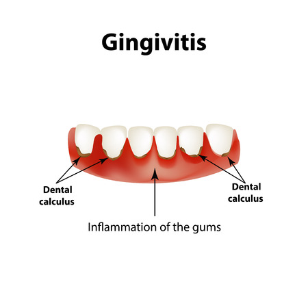 gingivitis: Gingivitis. Inflammation of the gums. Dental calculus. Infographics. Vector illustration on isolated background.