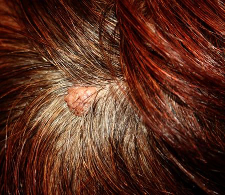 The birthmark on his head in her hair.