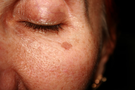 Brown spots under the eye. Pigmentation on the face.