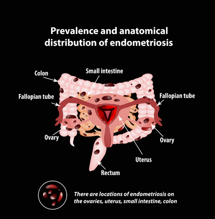 Endometriosis. The appearance of the disease endometriosis. Endometrium. Colon. Small intestine Infographics