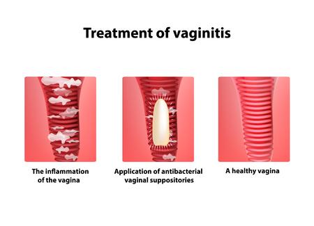 膣坐剤の治療。膣の炎症。インフォ グラフィック。孤立した背景の図。