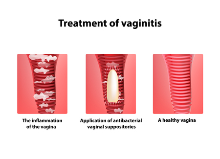 Treatment of vaginitis suppositories. inflammation of the vagina. Infographics. illustration on isolated background.